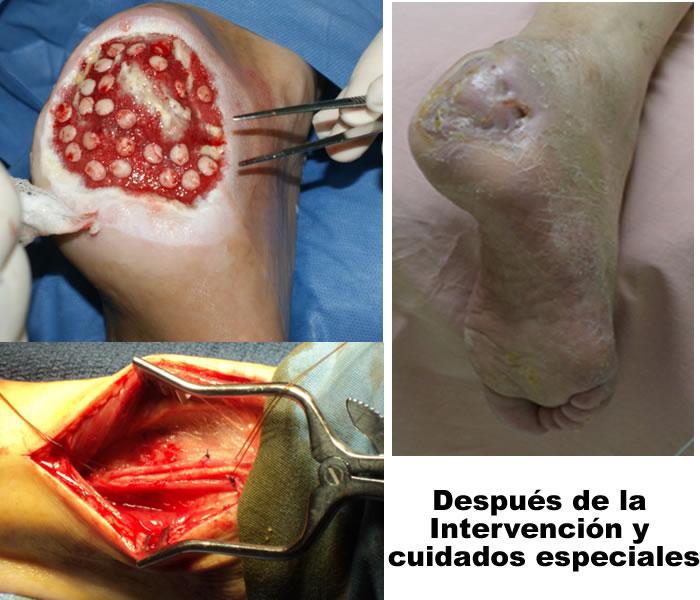 Acv noreste casos cl nicos for Operacion de pies
